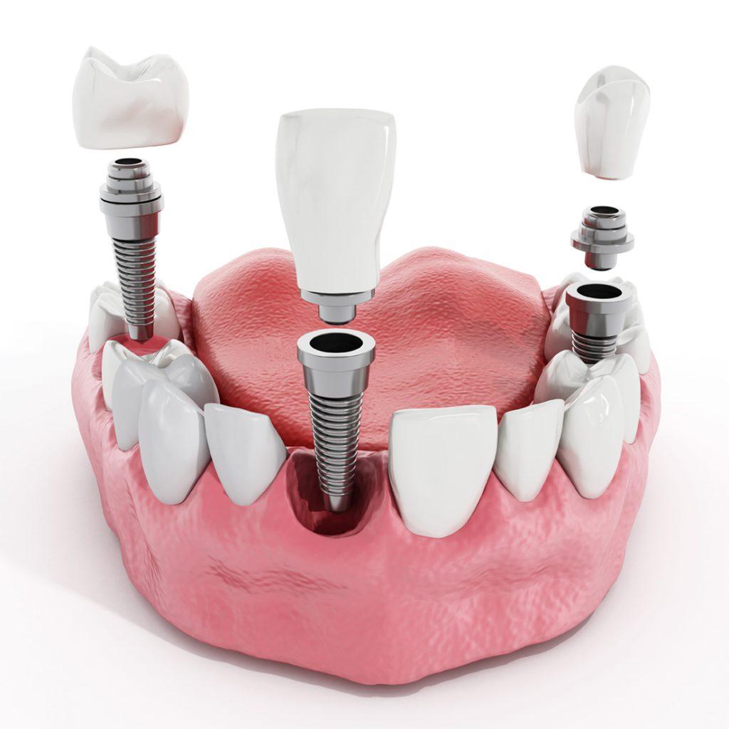 Coronas implantes