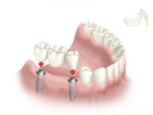 Implantes dentales pamplona