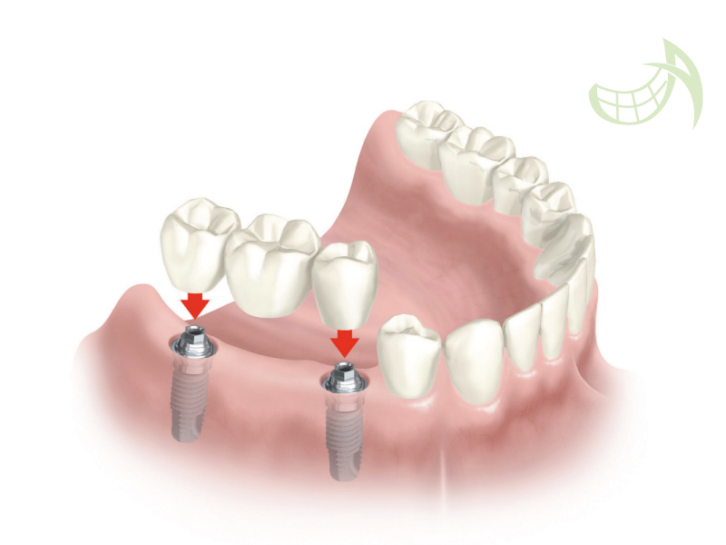 Implantes dentales pamplona