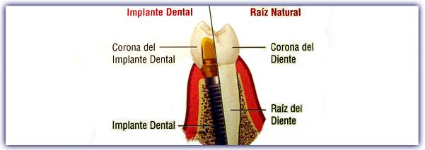 imagen-contenido-implantes2