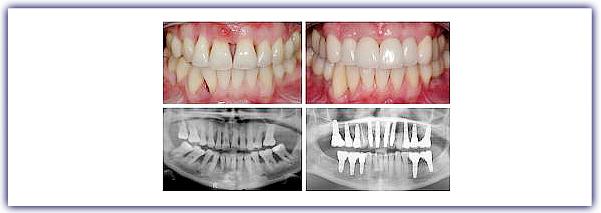 imagen-contenido-implantes3