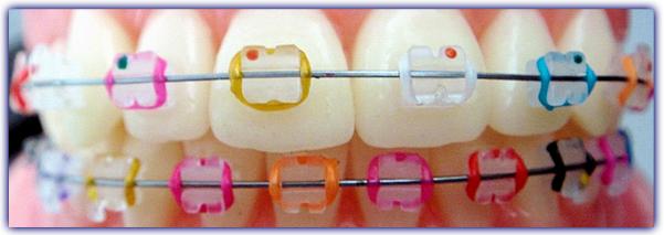 imagen-contenido-ortodoncianinoscolores
