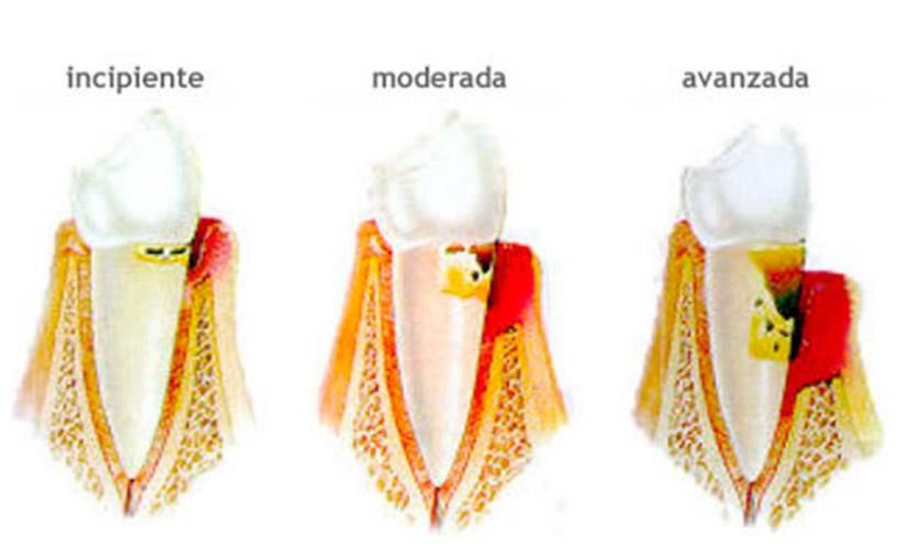 periodoncia_slides_001